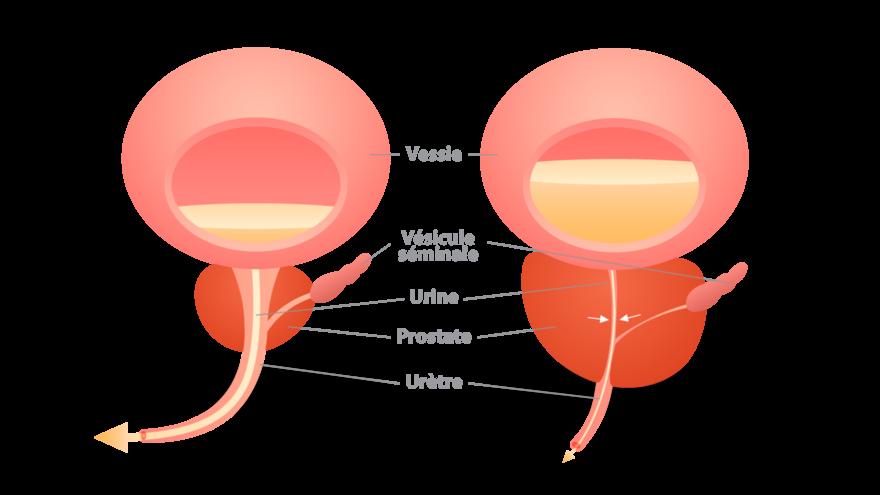 L'Hypertrophie Bénigne de la Prostate (HBP) : la phytothérapie comme solution alternative ? 3